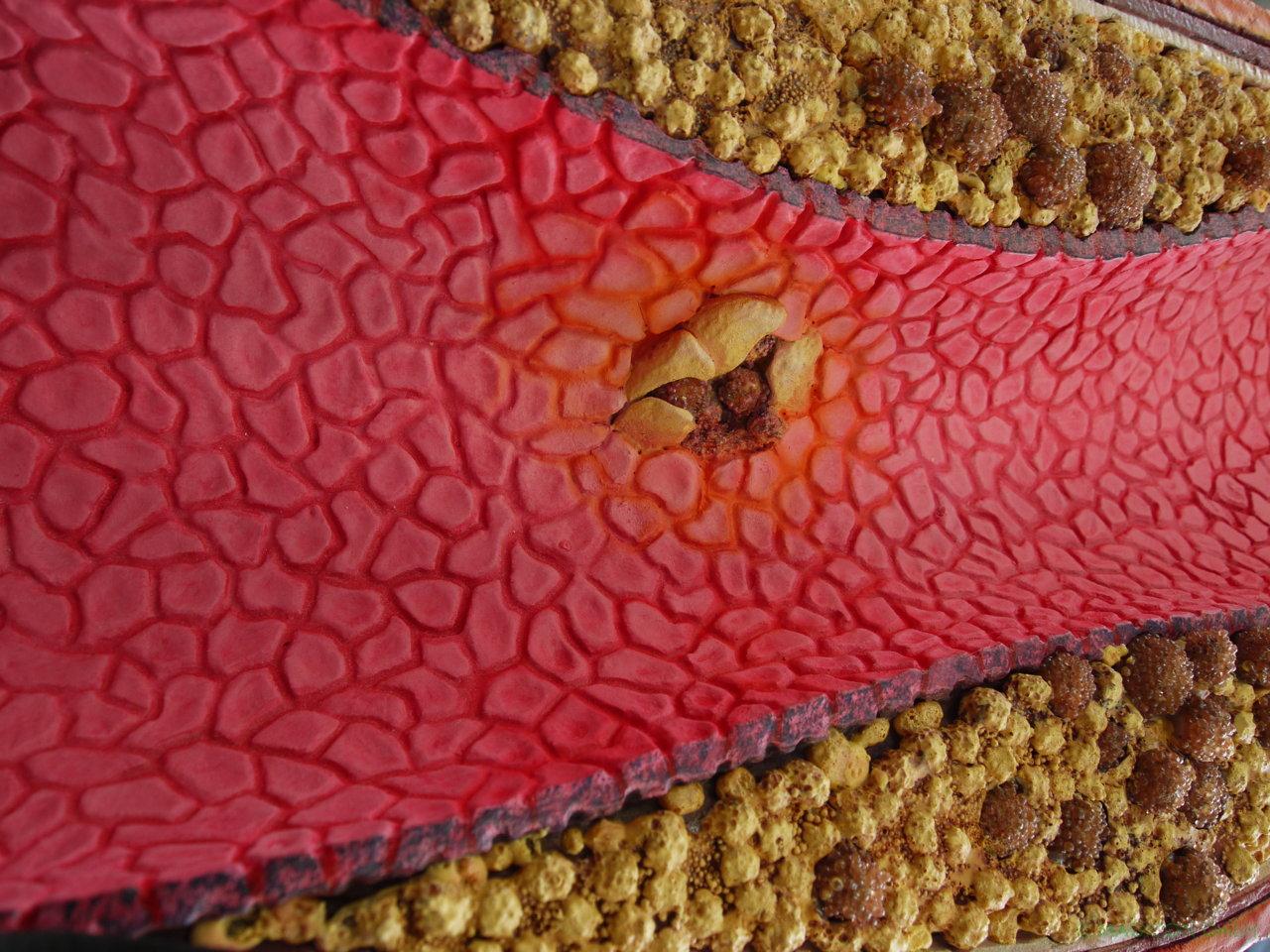 AMGEN_Blutbahn Arterie 17